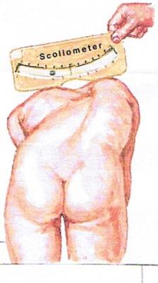 利用脊柱彎度計來量度肩胛骨的平衡