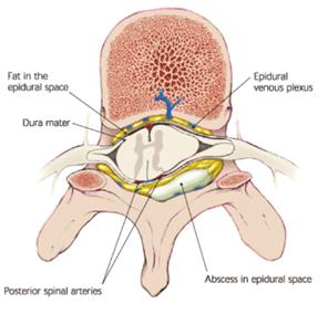 椎硬膜膿腫