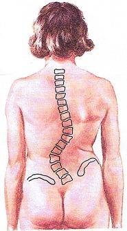 (圖三)左腰椎側 彎弧度70°及盤骨高低
