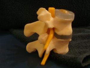 正常的椎骨距離,位於後端的脊骨神經在椎間孔通過來管埋身體不同部位