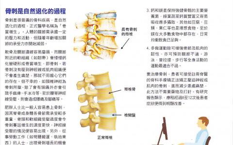 矯正錯誤姿勢免骨質增生