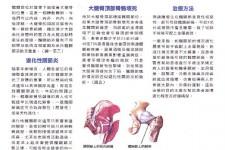 常見的髖關節痛症