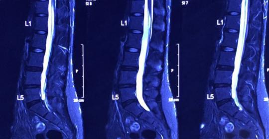 嚴重腰部椎間盤突出  不動手術行嗎?