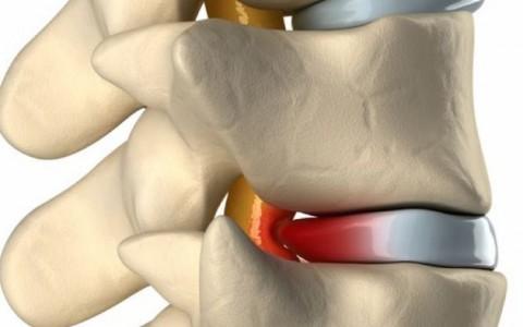 COX減壓治療舒緩椎間盤突出