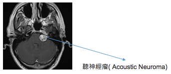 acoustic-neuroma-1
