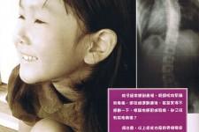 兒童脊骨側彎症
