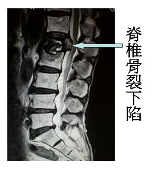 osteoporosis02
