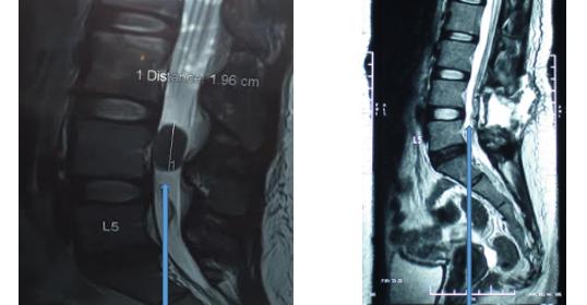 腳痛!當心椎管內脊膜瘤