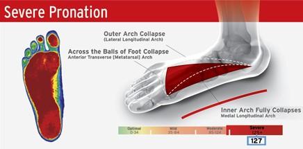 Cox® Technic   Custom-made Stabilizing Orthotics by Foot ...