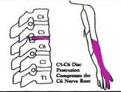圖二︰C5-C6椎節壓著C6神經線