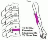 圖五︰T1-T2椎節壓著T1神經線