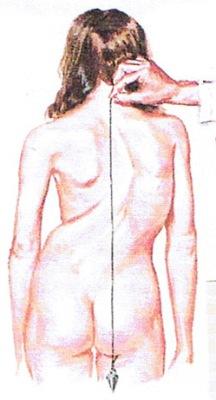 用垂直線來量度脊椎的彎位
