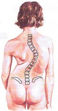 (圖一)右胸椎側彎度大約70°
