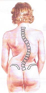 (圖二)右胸腰椎側彎弧度70°