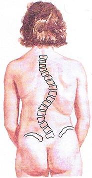 (圖四)雙側彎弧度:右胸側彎70°左腰側彎70°及盤骨高低