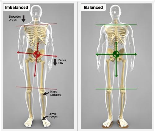Balance_Imbalance_drbackpain