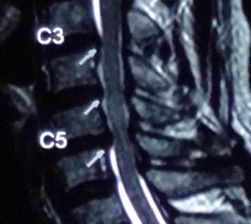 頸椎椎間盤最常見受壓的頸椎關節是頸椎第5節和第6節(C5,6)