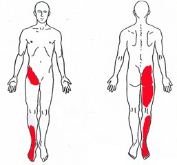 Sacroiliac-Joint-Syndrome_drbackpain