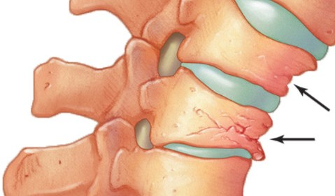 認識脊椎骨質疏鬆性骨折