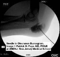 從超聲波影象的手肘黏液囊炎