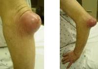 發炎及受細菌感染的手肘黏液囊