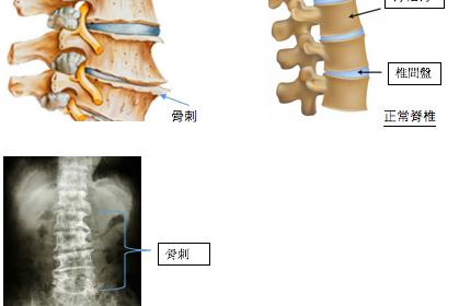 矯正錯誤姿勢避免骨質增生