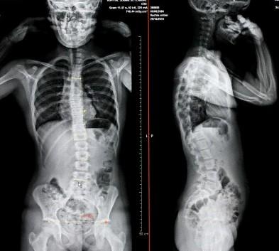脊骨側彎檢查X光,從X光片中找出脊骨側彎的弧度
